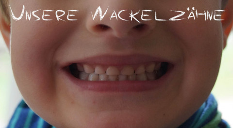 Unsere Wackelzähne
